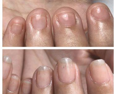 結婚式のために爪を綺麗にしたい