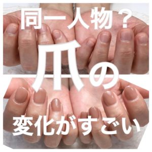 爪 綺麗になる 変化 沖縄