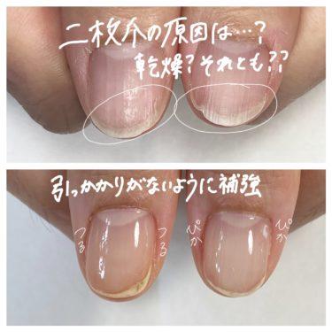【二枚爪】の原因は・・・