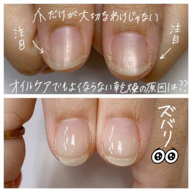 【爪周りの乾燥】は美爪になるために避けたい・・・