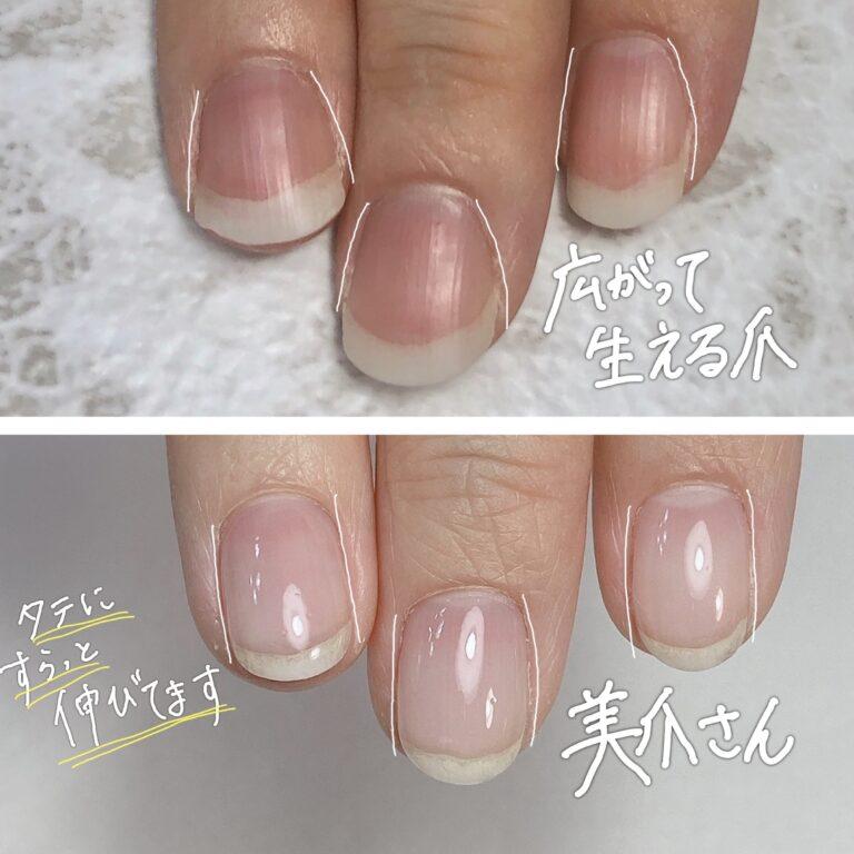 爪 白い部分しか伸びない ピンクの部分伸ばす 沖縄