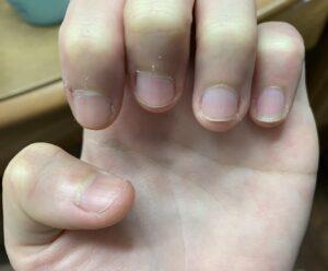 深爪 爪の白い部分 爪 伸ばせない